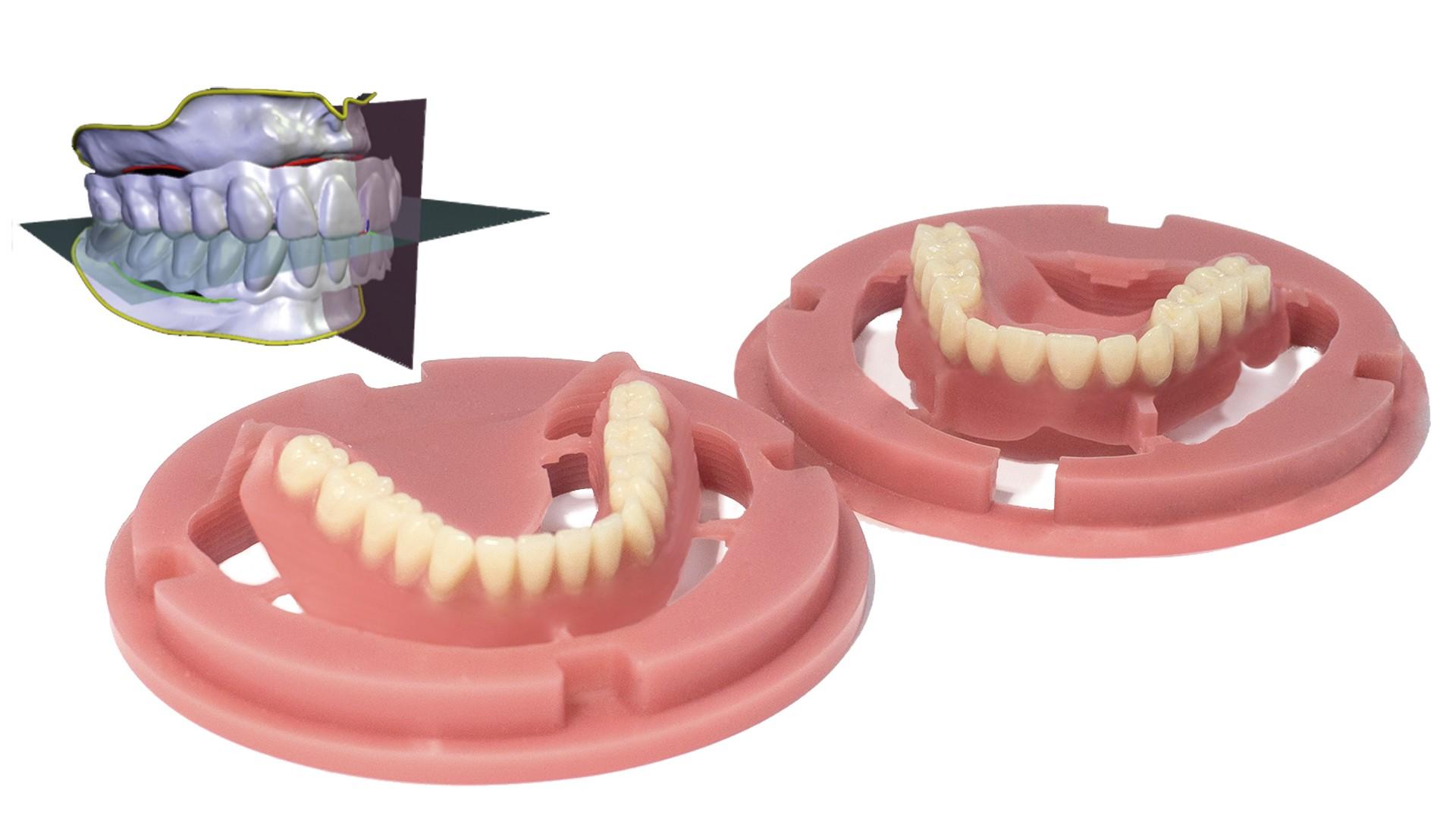 Fresado de dentaduras completas